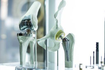 Hüftprothese – Hersteller haftet für Produktfehler auf Schadensersatz