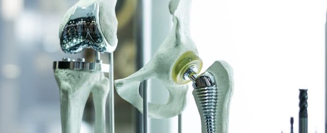 Hüftprothese Produktfehler Haftung Hersteller