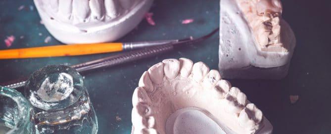 Fehlerhafte Zahnprothese - Schmerzensgeldansprüche und Schadensersatz