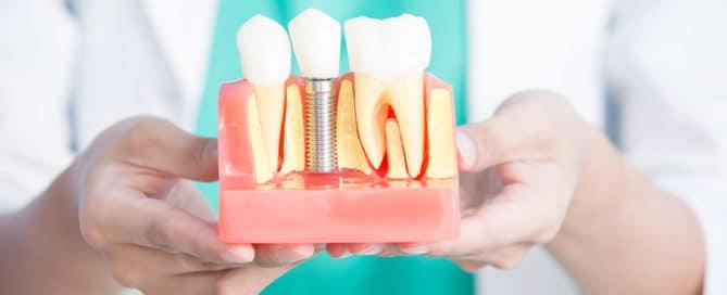Zahnarzthaftung bei mit Versorgung mit Disk-Implantaten
