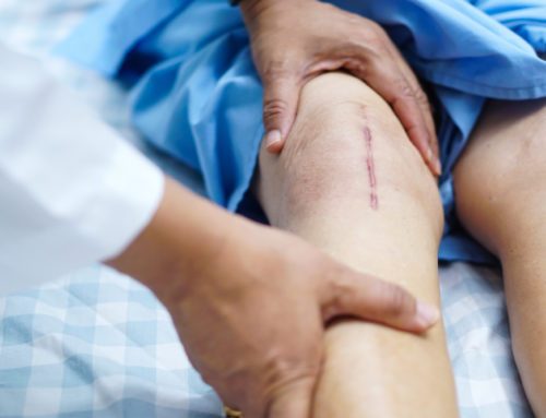 Knieoperation – Verletzung von Dokumentationspflichten