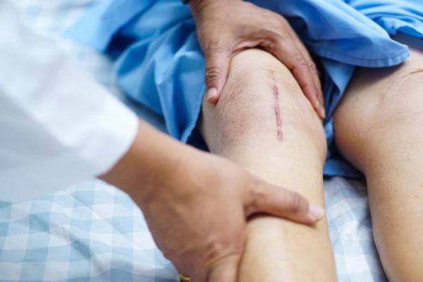 Knieoperation - Verletzung von Dokumentationspflichten