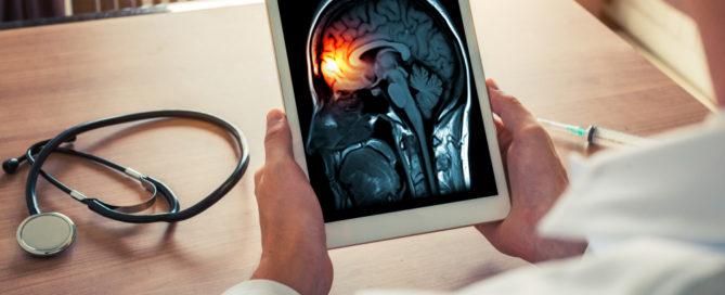 Verspätete Notfalltherapie bei Hirnhautentzündung - Krankenhaushaftung