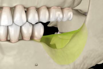 Versäumung einer Kieferkorrektur durch Multibandapparatur – Schadensersatz