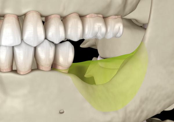 Versäumung einer Kieferkorrektur durch Multibandapparatur - Schadensersatz