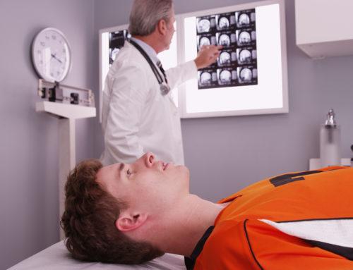 Behandlungsfehler nach einem Schädel-Hirn-Trauma – Befunderhebungsfehler