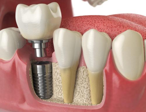Unbrauchbare Implantatbehandlung und Anspruch auf Ersatz von Mängelbeseitigungskosten