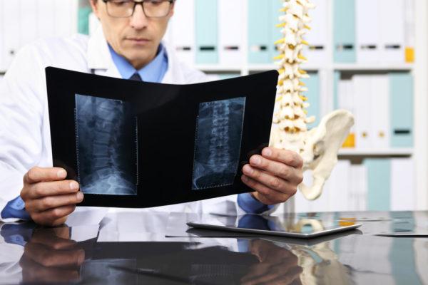 Unterscheidung von Diagnoseirrtum und Befunderhebungsfehler bei Bandscheibenvorfall