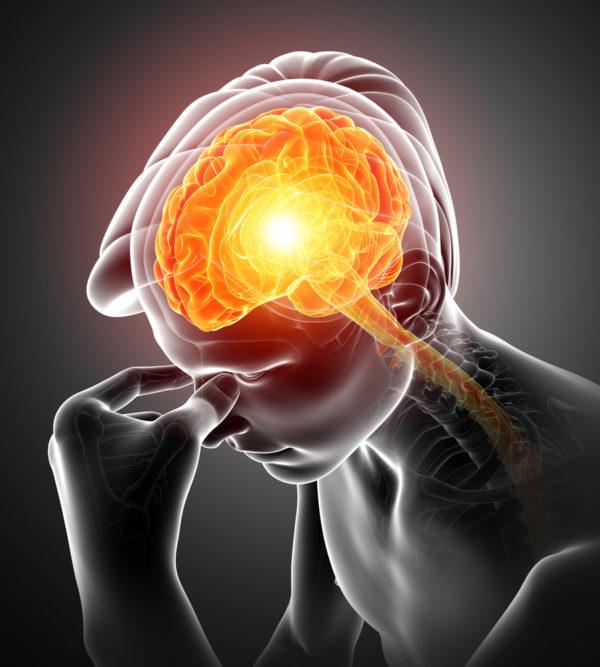 Schlaganfallhervorrufung durch ruckartige Mobilisierung des Kopfes eines Patienten