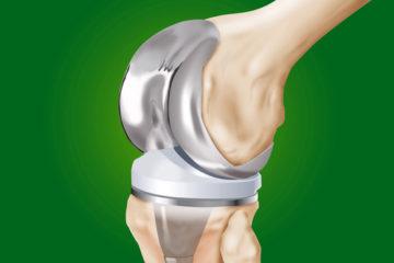 Krankenhaushaftung – Schmerzensgeldanspruch bei fehlerhafter Positionierung einer Knieprothese