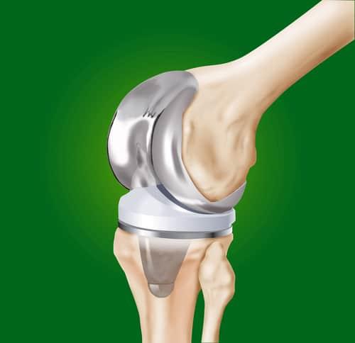 Krankenhaushaftung - Schmerzensgeldanspruch bei fehlerhafter Positionierung einer Knieprothese