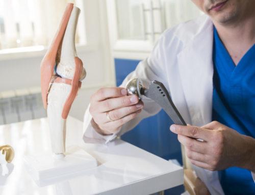 Arzthaftung – Einsetzung eines künstlichen Hüftgelenks – Hüft-TED