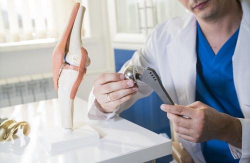 Arzthaftung - Einsetzung eines künstlichen Hüftgelenks - Hüft-TED