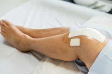 Schadenersatz- und Schmerzensgeldanspruch im Zusammenhang mit einer Kniegelenksoperation