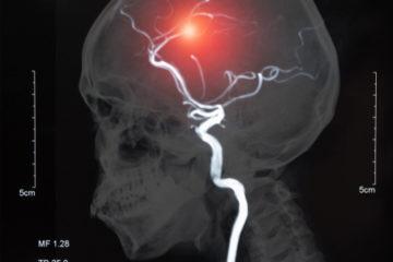 Tod Schlaganfallpatient durch von Therapiefehler ausgelöster Hypoxie mit Hirnschädigung