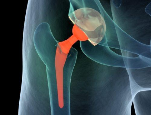 Behandlungsfehler bei Bein trotz einer Trochanterfraktur nach Implantation einer Hüftprothese
