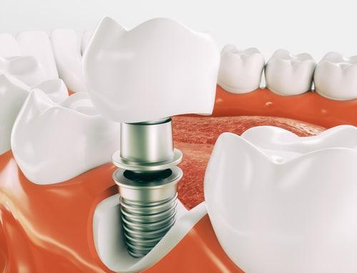 Zahnarzthaftung - Risiko dauerhafte Nervschädigung bei Implantatversorgung