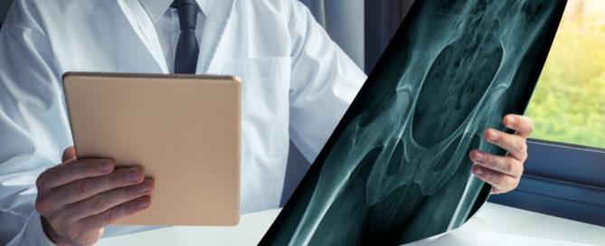 Aufklärungspflicht über alternative Behandlungsmethoden bei einer Hüftoperation