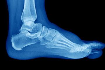 Diagnosefehler durch Übersehen einer Fersenbein-Fraktur auf Röntgenbildern