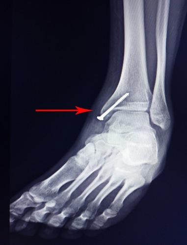 Behandlungsfehler bei Verwendung einer überlangen Schraube bei Operation eines Sprunggelenks
