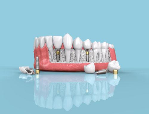 Unbrauchbarkeit einer Zahnprothese nach einer Vielzahl misslungener Nachbesserungsversuche
