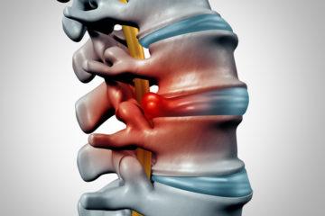Schadensersatz- und Schmerzensgeldansprüche bei fehlerhafter Bandscheibenoperation