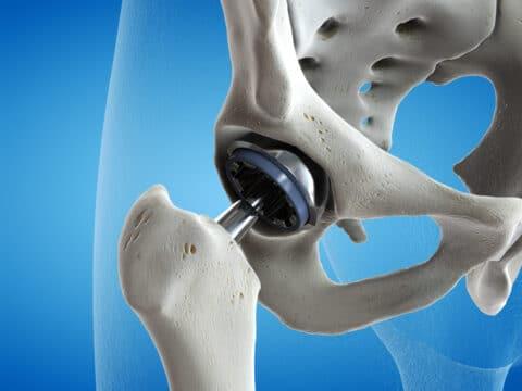 Schuldhafte Körperverletzung durch Metallabrieb einer Großkopf-Prothese