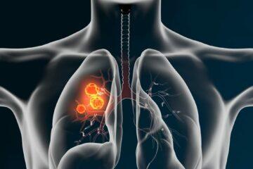 Schadensersatz und Schmerzensgeld bei Verkennung eines Bronchialkarzinoms durch Pneumologen
