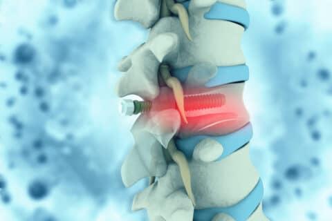 Fehllage von Implantaten - Arzt- und Krankenhaushaftung
